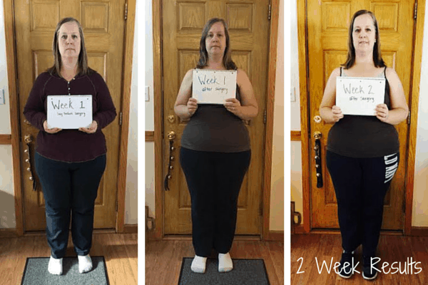 Week 2 Gastric Sleeve Results
